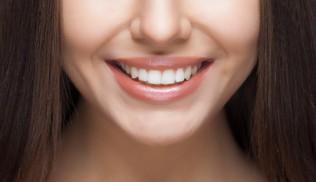 Sourire mon beau sourire…